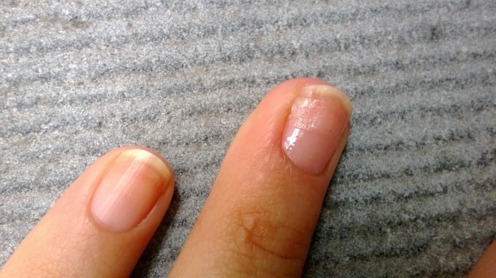 Ouch! Comment réparer un ongle cassé. (5/5)